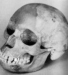 Dawson's Infamous Piltdown Man Paleontological Hoax